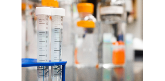 Chemistry vials used in a laboratory for drinking water testing
